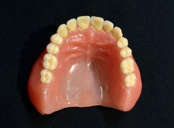 上下顎同時印象法総義歯