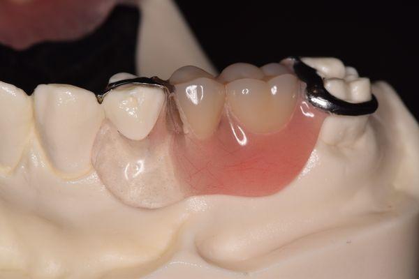 バネのない義歯