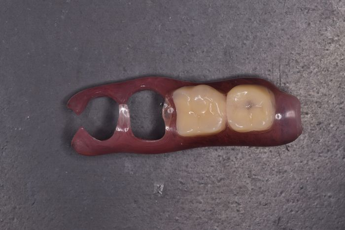 左上に1本残存歯あり