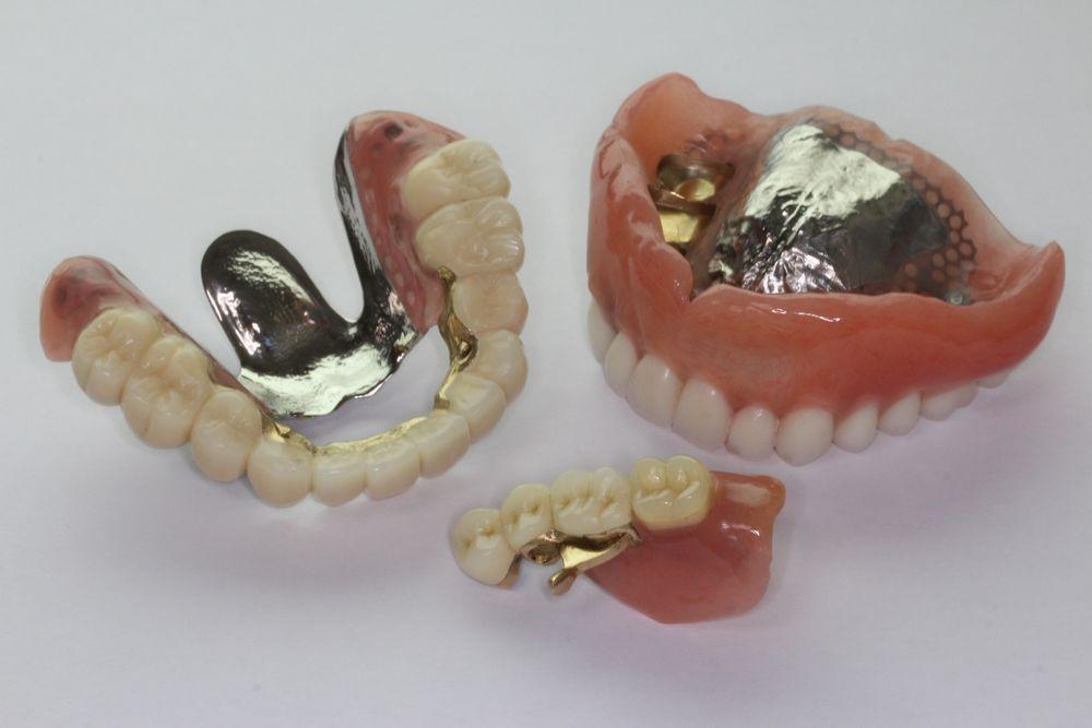 ドイツ式テレスコープ義歯