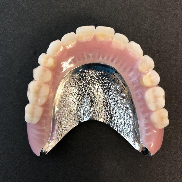 自費(金属床義歯)