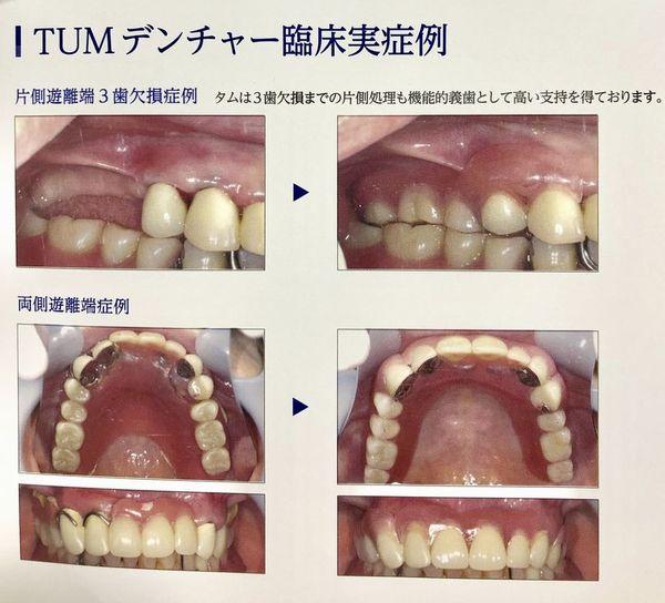 バネがないタイプの義歯です