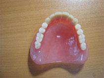 保険の義歯と保険適用外の義歯の違いについて