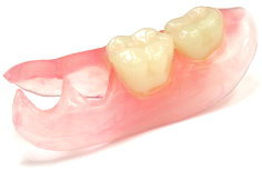 部分入れ歯のバネが見えて人と話す時気になります。