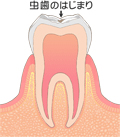 CO(要注意歯)