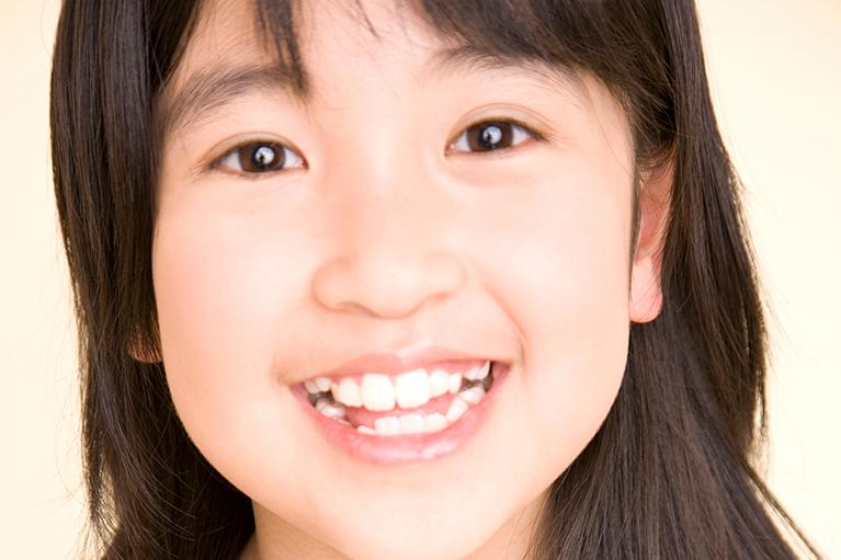 6歳臼歯は生え始めに注意