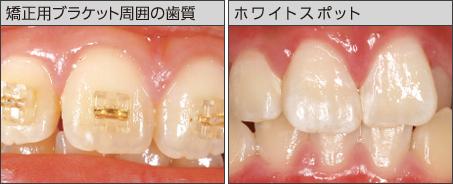 歯面コーティング