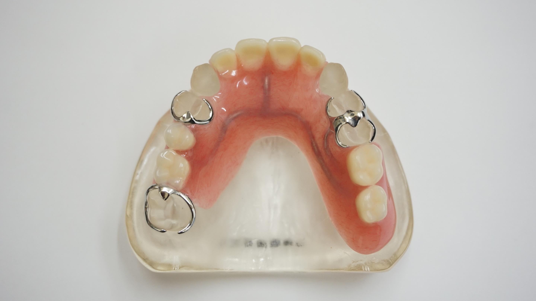 保険部分義歯