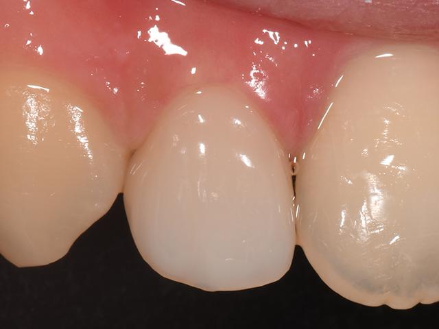前歯CAD/CAM冠